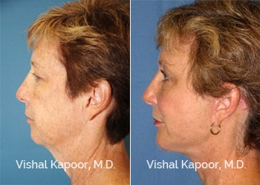Patient 05 Side View Face Neck Rejuvenation Beverly Hills Cosmetic Plastic Surgery Doc