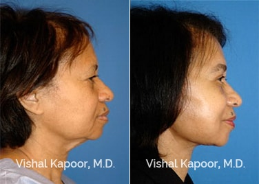 Patient 06 Side View Face Neck Rejuvenation Beverly Hills Cosmetic Plastic Surgery Doc