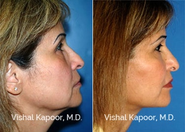 Patient 07 Side View Face Neck Rejuvenation Beverly Hills Cosmetic Plastic Surgery Doc