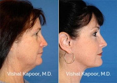 Patient 09 Side View Face Neck Rejuvenation Beverly Hills Cosmetic Plastic Surgery Doc