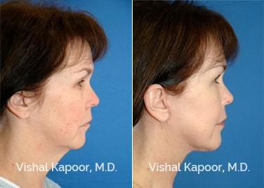 Patient 10 3/4 View Face Neck Rejuvenation Beverly Hills Cosmetic Plastic Surgery Doc