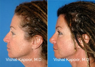 Patient 11 Side View Face Neck Rejuvenation Beverly Hills Cosmetic Plastic Surgery Doc
