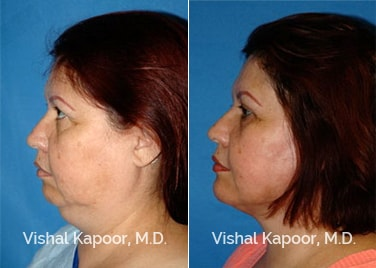 Patient 12 Side View Face Neck Rejuvenation Beverly Hills Cosmetic Plastic Surgery Doc