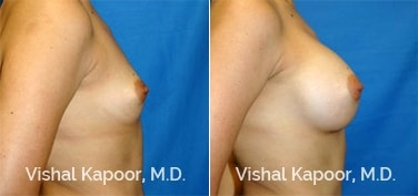Patient 25 Side View Breast Augmentation Beverly Hills Cosmetic Plastic Surgery Doc
