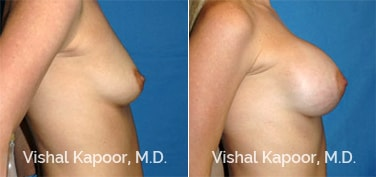 Patient 28 Side View Breast Augmentation Beverly Hills Cosmetic Plastic Surgery Doc