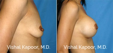 Patient 29 Side View Breast Augmentation Beverly Hills Cosmetic Plastic Surgery Doc