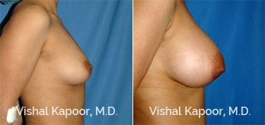 Patient 30 Side View Breast Augmentation Beverly Hills Cosmetic Plastic Surgery Doc