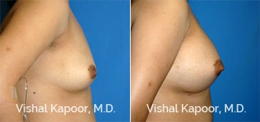 Patient 31 Side View Breast Augmentation Beverly Hills Cosmetic Plastic Surgery Doc