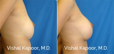 Patient 05 Side View Breast Augmentation Beverly Hills Cosmetic Plastic Surgery Doc