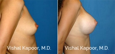 Patient 32 Side View Breast Augmentation Beverly Hills Cosmetic Plastic Surgery Doc