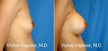 Patient 33 Side View Breast Augmentation Beverly Hills Cosmetic Plastic Surgery Doc