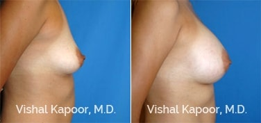 Patient 40 Side View Breast Augmentation Beverly Hills Cosmetic Plastic Surgery Doc