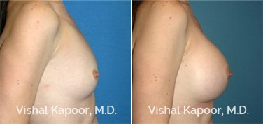 Patient 41 Side View Breast Augmentation Beverly Hills Cosmetic Plastic Surgery Doc