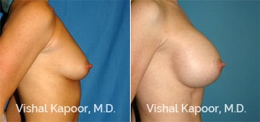 Patient 42 Side View Breast Augmentation Beverly Hills Cosmetic Plastic Surgery Doc