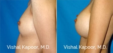 Patient 48 Side View Breast Augmentation Beverly Hills Cosmetic Plastic Surgery Doc
