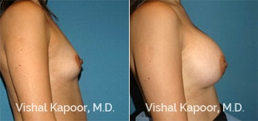 Patient 51 Side View Breast Augmentation Beverly Hills Cosmetic Plastic Surgery Doc