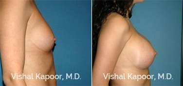 Patient 52 Side View Breast Augmentation Beverly Hills Cosmetic Plastic Surgery Doc