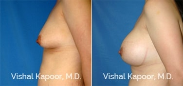 Patient 54 Side View Breast Augmentation Beverly Hills Cosmetic Plastic Surgery Doc