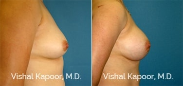 Patient 55 Side View Breast Augmentation Beverly Hills Cosmetic Plastic Surgery Doc