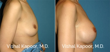 Patient 56 Side View Breast Augmentation Beverly Hills Cosmetic Plastic Surgery Doc
