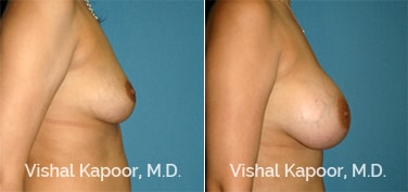 Patient 57 Side View Breast Augmentation Beverly Hills Cosmetic Plastic Surgery Doc