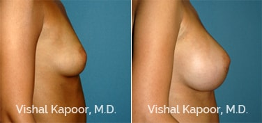 Patient 59 Side View Breast Augmentation Beverly Hills Cosmetic Plastic Surgery Doc