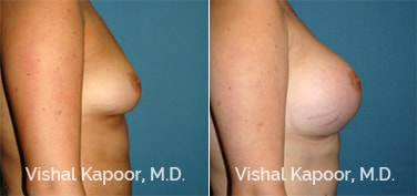 Patient 60 Side View Breast Augmentation Beverly Hills Cosmetic Plastic Surgery Doc