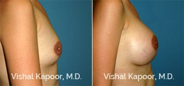 Patient 65 Side View Breast Augmentation Beverly Hills Cosmetic Plastic Surgery Doc