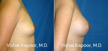 Patient 08 Side View Breast Augmentation Beverly Hills Cosmetic Plastic Surgery Doc