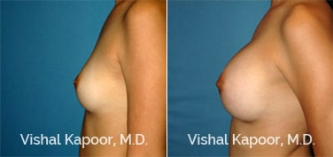 Patient 67 Side View Breast Augmentation Beverly Hills Cosmetic Plastic Surgery Doc