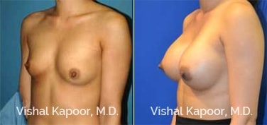 Patient 68 3/4 View Breast Augmentation Beverly Hills Cosmetic Plastic Surgery Doc