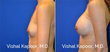 Patient 70 Side View Breast Augmentation Beverly Hills Cosmetic Plastic Surgery Doc