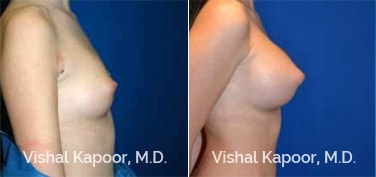 Patient 72 Side View Breast Augmentation Beverly Hills Cosmetic Plastic Surgery Doc