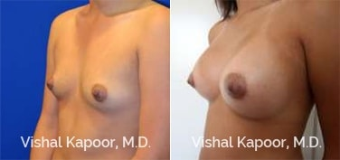 Patient 75 Left Side 3/4 View Breast Augmentation Beverly Hills Cosmetic Plastic Surgery Doc