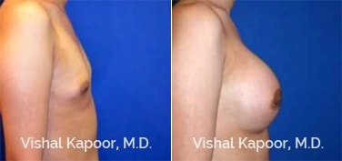 Patient 76 Side View Breast Augmentation Beverly Hills Cosmetic Plastic Surgery Doc