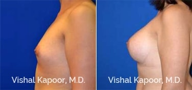 Patient 83 Side View Breast Augmentation Beverly Hills Cosmetic Plastic Surgery Doc