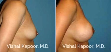 Patient 85 Side View Breast Augmentation Beverly Hills Cosmetic Plastic Surgery Doc