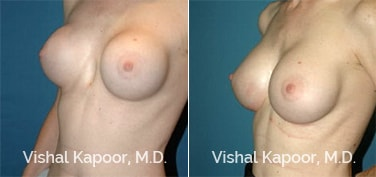 Patient 03 3/4 View Breast Augmentation Revision Beverly Hills Cosmetic Plastic Surgery Doc