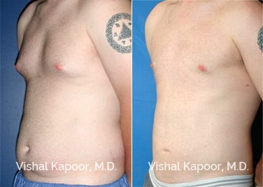 Patient 01 3/4 View Male Breast Reduction Beverly Hills Cosmetic Plastic Surgery Doc