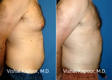 Patient 03 Side View Male Breast Reduction Beverly Hills Cosmetic Plastic Surgery Doc