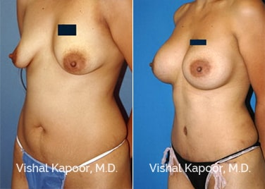 Patient 02 3/4 View Breast Augmentation Beverly Hills Cosmetic Plastic Surgery Doc