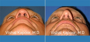 Revision Rhinoplasty Patient 1