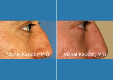 Revision Rhinoplasty Patient 2