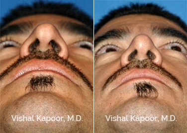 Revision Rhinoplasty Patient 10