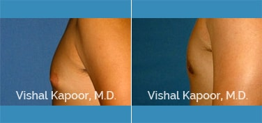 Patient 27 Side View Male Breast Reduction Beverly Hills Cosmetic Plastic Surgery Doc