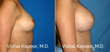 Patient 21 Side View Breast Augmentation Beverly Hills Cosmetic Plastic Surgery Doc