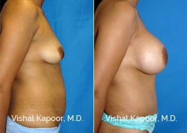 Patient 04 Side View Breast Augmentation Beverly Hills Cosmetic Plastic Surgery Doc