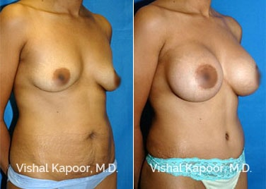 Patient 04 3/4 View Breast Augmentation Beverly Hills Cosmetic Plastic Surgery Doc