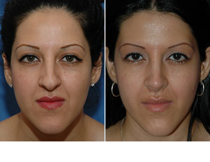 Rhinoplasty patients' before and after pictures