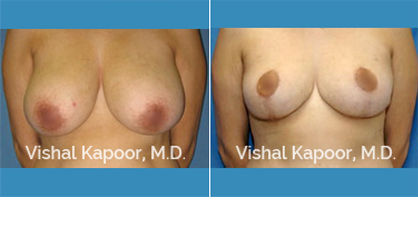 Female Breast Reduction Beverly Hills
